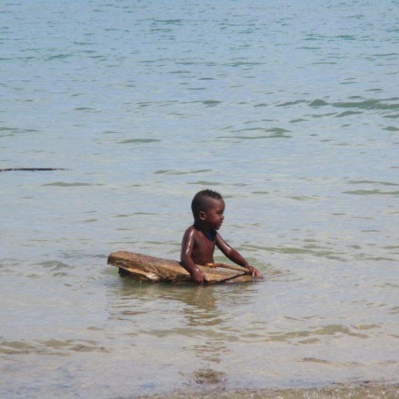 Die Beschneidung in Madagaskar